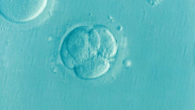 Εξωσωματική Γονιμοποίηση: Όλα όσα πρέπει να ξέρεις!